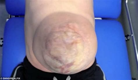 Man's giant hernia popped out of his stomach every time he