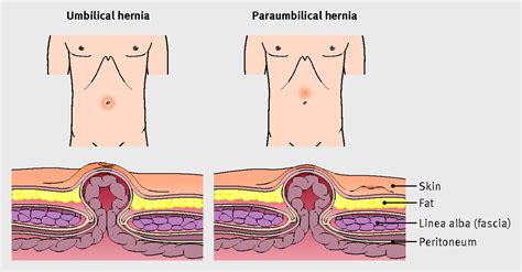 Umbilical hernia   The BMJ