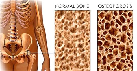 Cow's Milk Destroys Your Bones And Causes Inflammation In