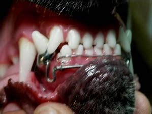 Updates in orthodontic treatments of lower incisors